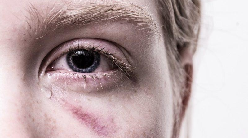 Türke verprügelte brutal deutschen Schüler: Wieso muss erst die AfD den Vorfall öffentlich machen?